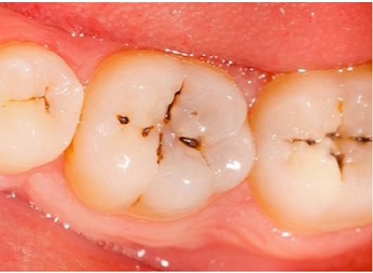 Izbjeljivanje zubi cijena brcko
