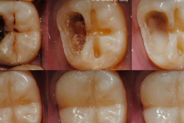 Четкице за зубе